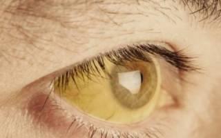 Причины и лечение пигментного гепатоза