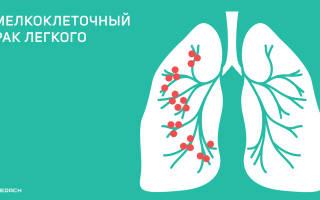 Мелкоклеточный вид рака легких