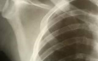 Перелом первого ребра