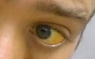 Причины, симптомы и лечение желтухи у взрослых
