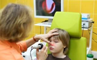 Полипозный синусит: лечение, причины и симптомы