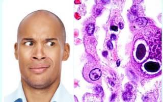 Симптомы и лечение цитомегаловируса у мужчин