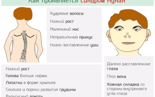 Синдром Нунан, как лечить?