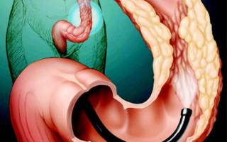 Полипы в желудке – опасно ли это? Как лечить?