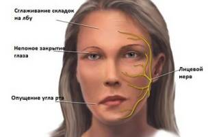 Атрофия мышц лица