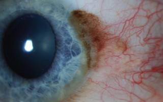 Причины, симптомы и лечение рака глаза