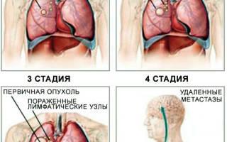 Операция на легких при раке