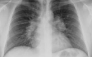 Саркоидоз легких: причины, симптомы и лечение