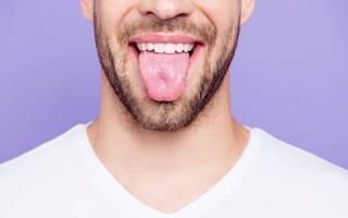Причины, симптомы и лечение белого налета на языке