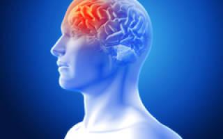 Причины, виды, признаки и последствия инсульта
