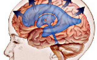 Внутренняя гидроцефалия