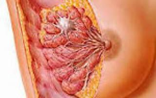 Виды, причины и симптомы фибромы молочной железы