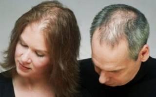 Андрогенная алопеция у мужчин и женщин