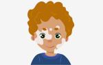 Причины, симптомы и лечение витилиго у детей