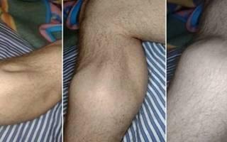 Судороги в икроножных мышцах: что делать?