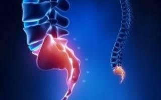Симптомы, последствия и лечение перелома копчика