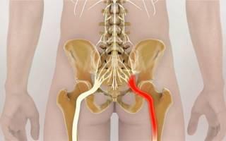 Защемление нерва в суставах