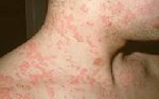 Причины и симптомы крапивницы