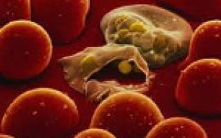 Малярия: первые симптомы и лечение