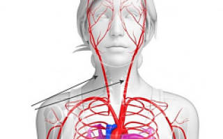 Стеноз сосудов головного мозга, шеи и сердца