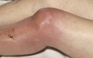 Причины, симптомы и лечение гнойного артрита