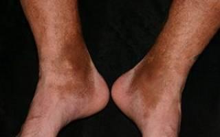 Гемосидероз: симптомы и лечение